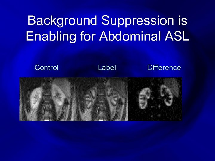 Background Suppression is Enabling for Abdominal ASL Control Label Difference