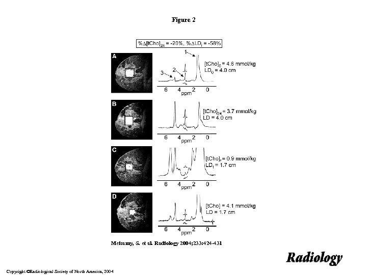 Figure 2 Meisamy, S. et al. Radiology 2004; 233: 424 -431 Copyright ©Radiological Society