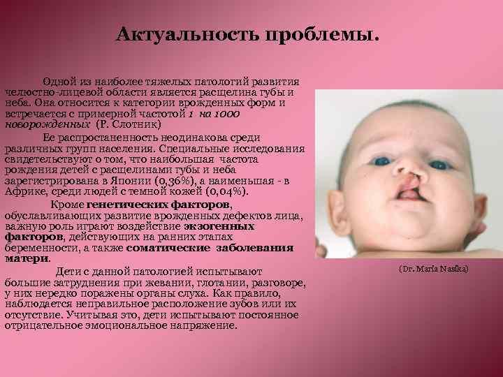 Актуальность проблемы. Одной из наиболее тяжелых патологий развития челюстно-лицевой области является расщелина губы и