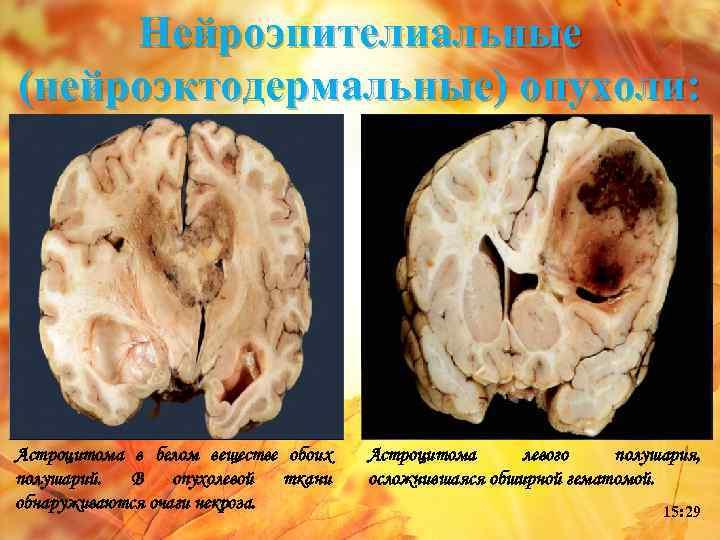 Нейроэпителиальные (нейроэктодермальные) опухоли: Астроцитома в белом веществе обоих полушарий. В опухолевой ткани обнаруживаются очаги