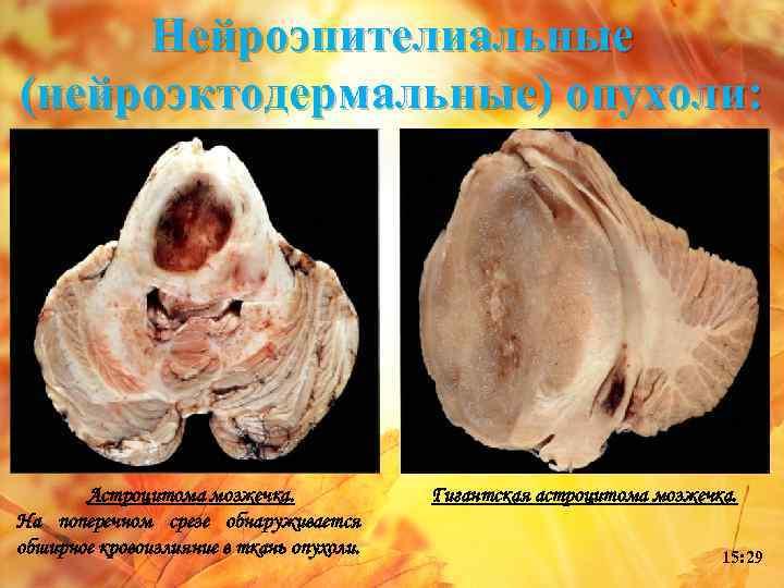 Нейроэпителиальные (нейроэктодермальные) опухоли: Астроцитома мозжечка. На поперечном срезе обнаруживается обширное кровоизлияние в ткань опухоли.
