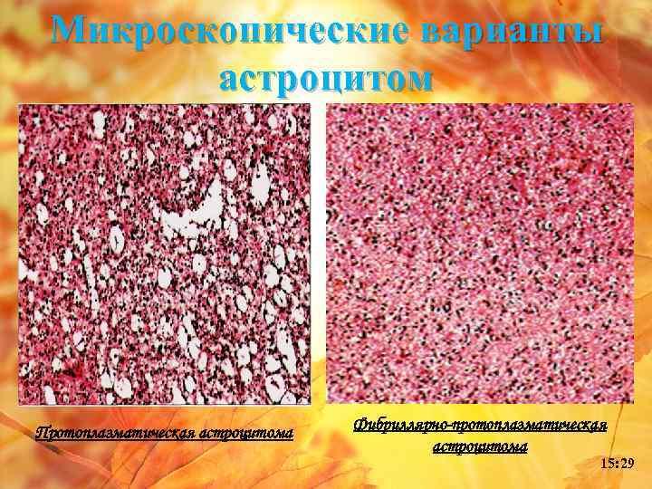 Микроскопические варианты астроцитом Протоплазматическая астроцитома Фибриллярно-протоплазматическая астроцитома 15: 29