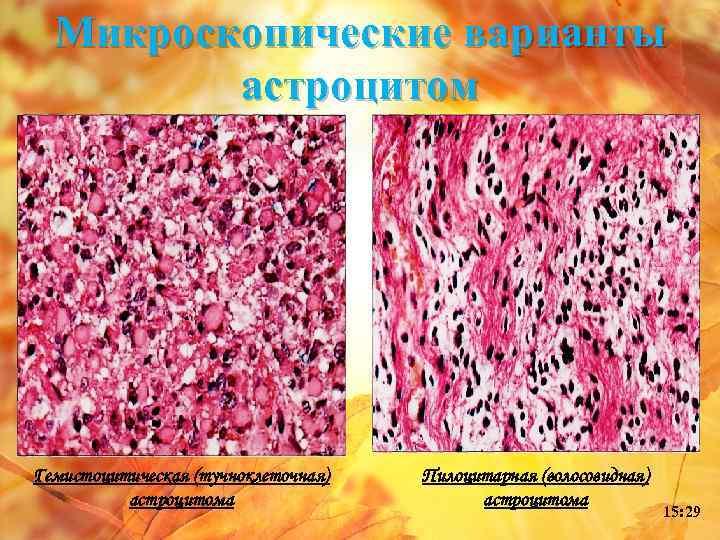 Микроскопические варианты астроцитом Гемистоцитическая (тучноклеточная) астроцитома Пилоцитарная (волосовидная) астроцитома 15: 29