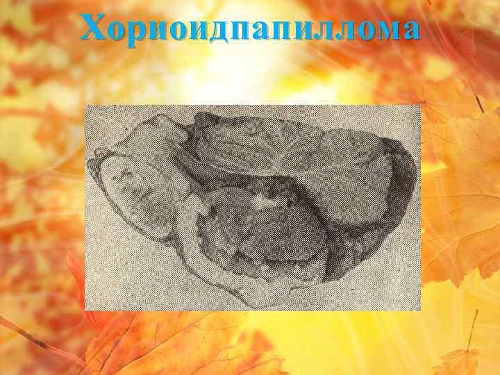 Хориоидпапиллома