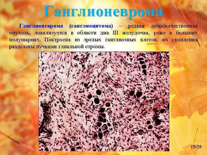 Ганглионеврома (ганглиоцитома) – редкая доброкачественная опухоль, локализуется в области дна III желудочка, реже в