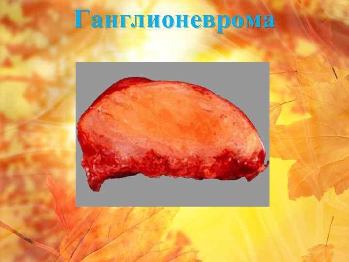 Ганглионеврома
