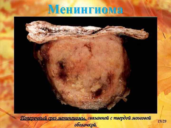Менингиома Поперечный срез менингиомы, связанной с твердой мозговой оболочкой. 15: 29