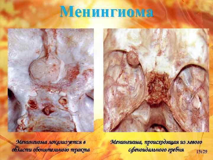 Менингиома локализуется в области обонятельного тракта Менингиома, происходящая из левого сфеноидального гребня 15: 29