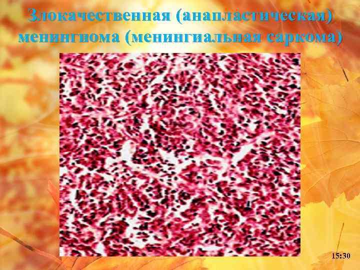 Злокачественная (анапластическая) менингиома (менингиальная саркома) 15: 30