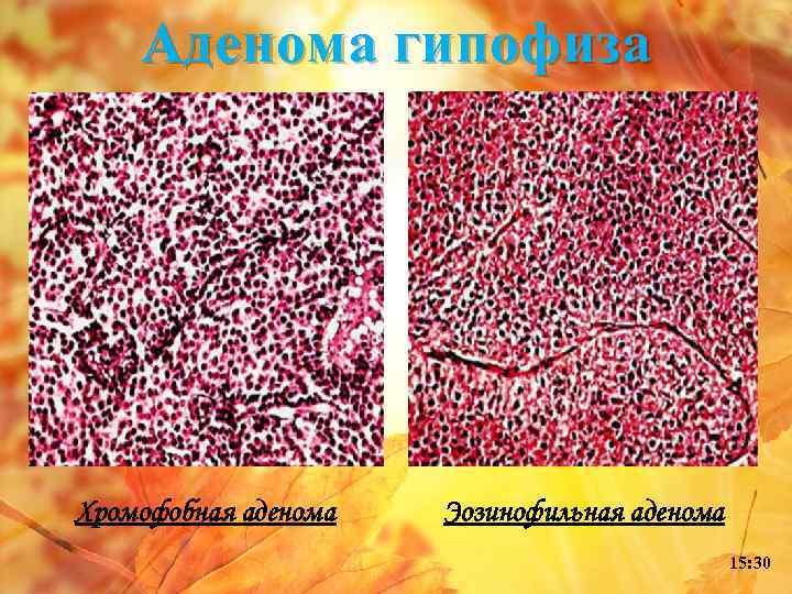 Аденома гипофиза Хромофобная аденома Эозинофильная аденома 15: 30