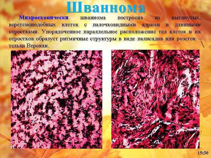 Шваннома Микроскопически шваннома построена из вытянутых, веретеноподобных клеток с палочковидными ядрами и длинными отростками.