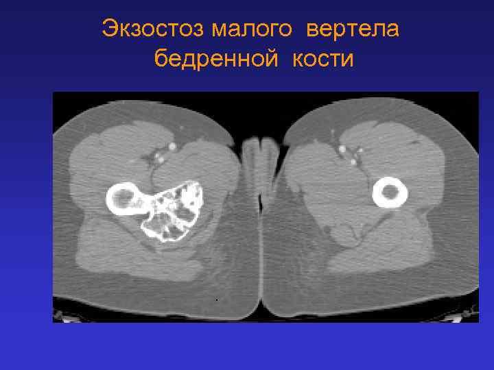 Экзостоз малого вертела бедренной кости