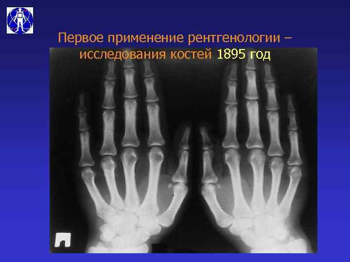 Первое применение рентгенологии – исследования костей 1895 год