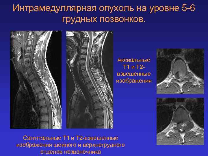 Интрамедуллярная опухоль на уровне 5 -6 грудных позвонков. Аксиальные Т 1 и Т 2