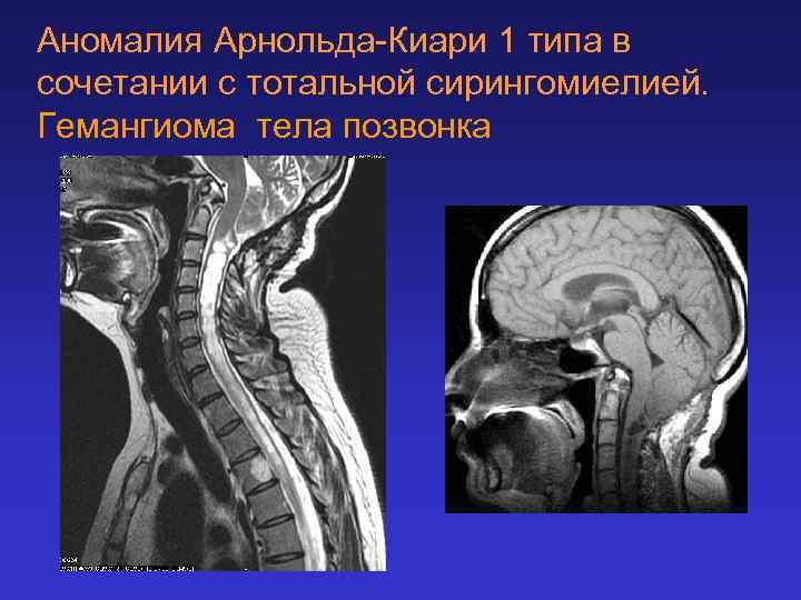 Аномалия Арнольда-Киари 1 типа в сочетании с тотальной сирингомиелией. Гемангиома тела позвонка