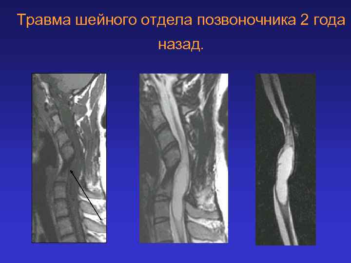 Травма шейного отдела позвоночника 2 года назад.