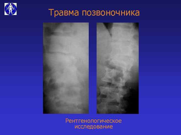 Травма позвоночника Рентгенологическое исследование
