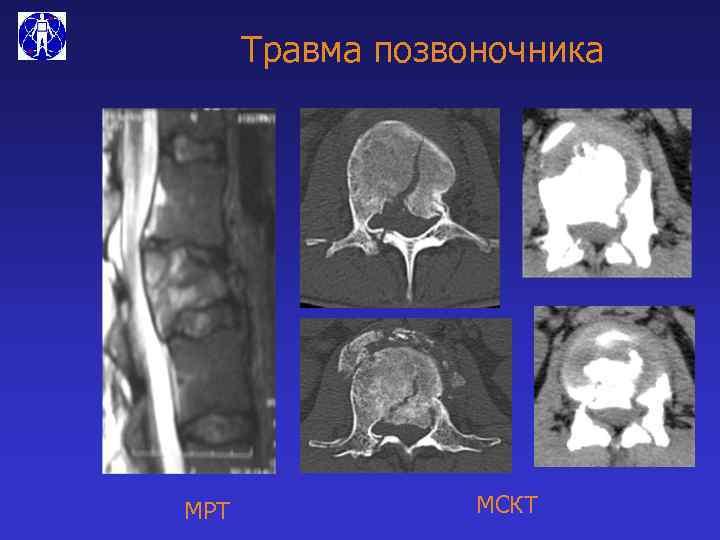Травма позвоночника МРТ МСКТ
