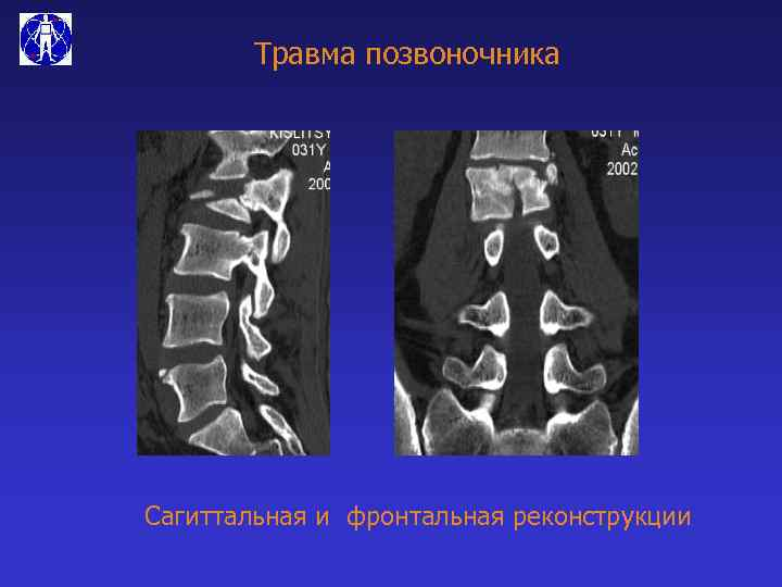 Травма позвоночника Сагиттальная и фронтальная реконструкции