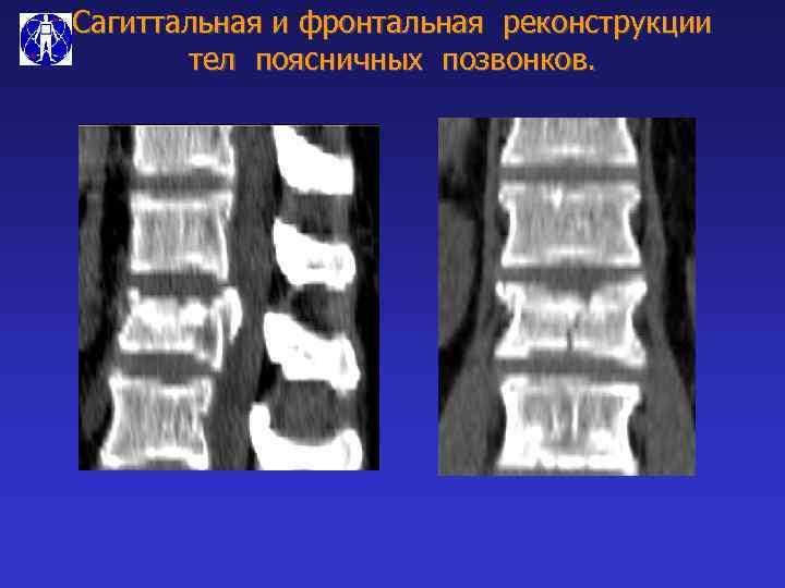 Сагиттальная и фронтальная реконструкции тел поясничных позвонков.