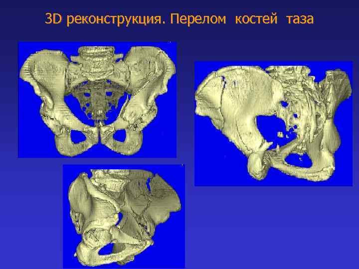 3 D реконструкция. Перелом костей таза