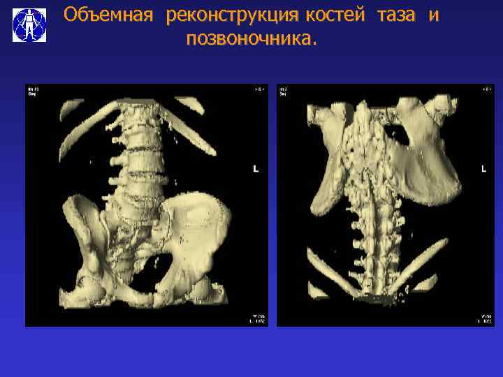 Объемная реконструкция костей таза и позвоночника.