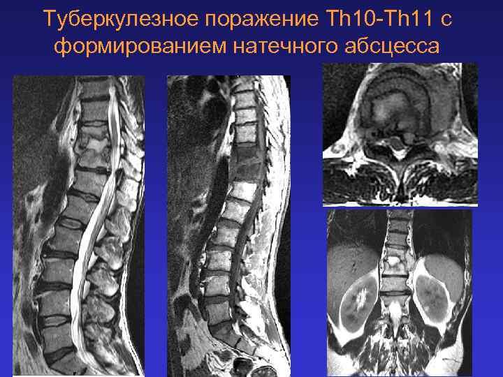 Туберкулезное поражение Th 10 -Th 11 с формированием натечного абсцесса