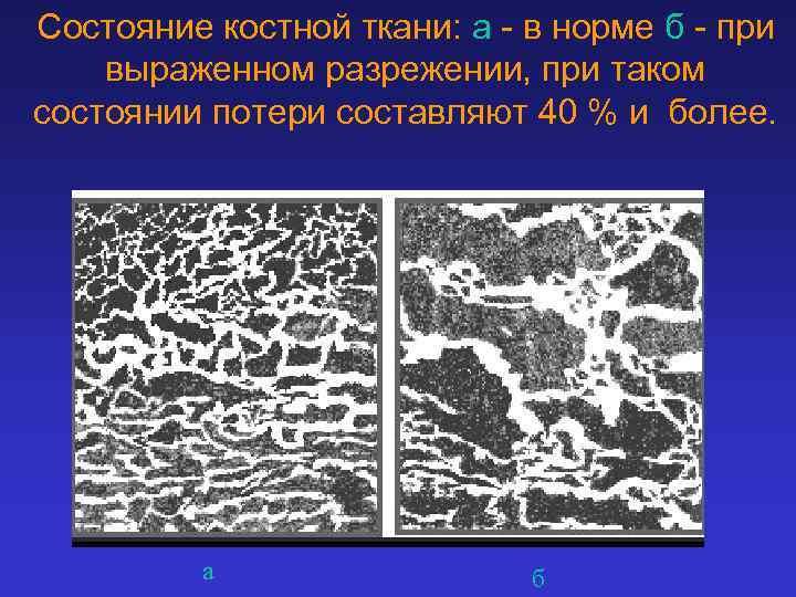 Состояние костной ткани: а - в норме б - при выраженном разрежении, при таком