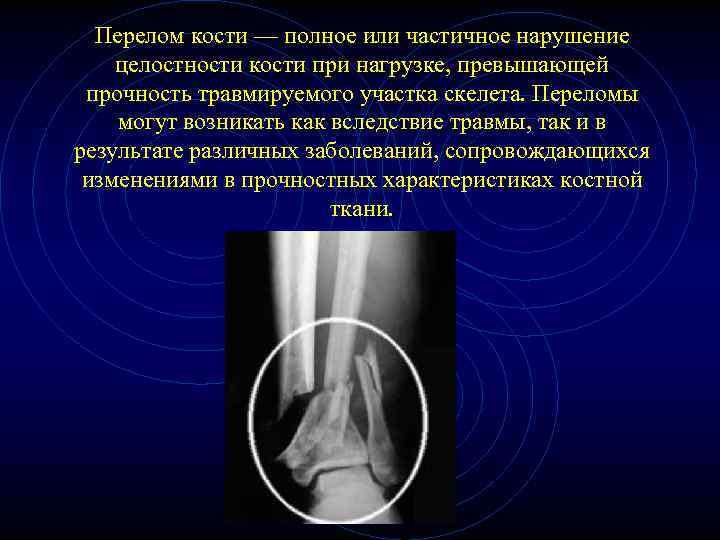 Перелом кости — полное или частичное нарушение целостности кости при нагрузке, превышающей прочность травмируемого