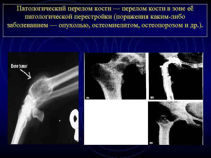 Патологический перелом кости — перелом кости в зоне её патологической перестройки (поражения каким-либо заболеванием
