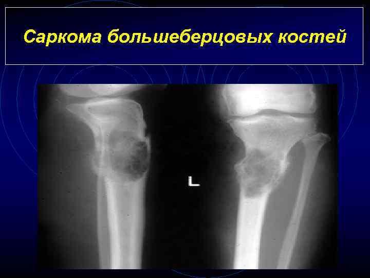 Саркома большеберцовых костей