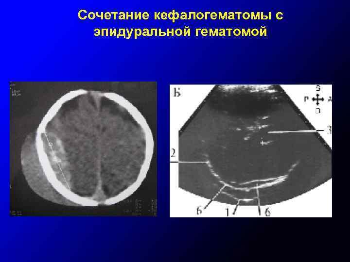 Сочетание кефалогематомы с эпидуральной гематомой