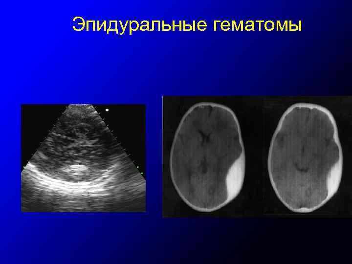 Эпидуральные гематомы