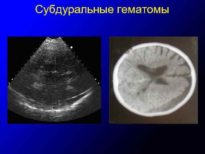 Субдуральные гематомы
