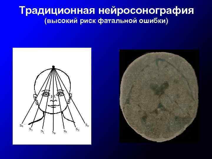 Традиционная нейросонография (высокий риск фатальной ошибки)