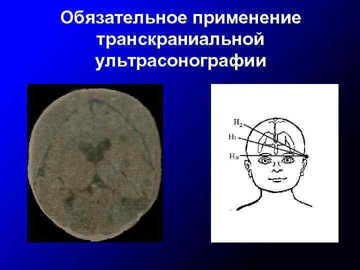 Обязательное применение транскраниальной ультрасонографии