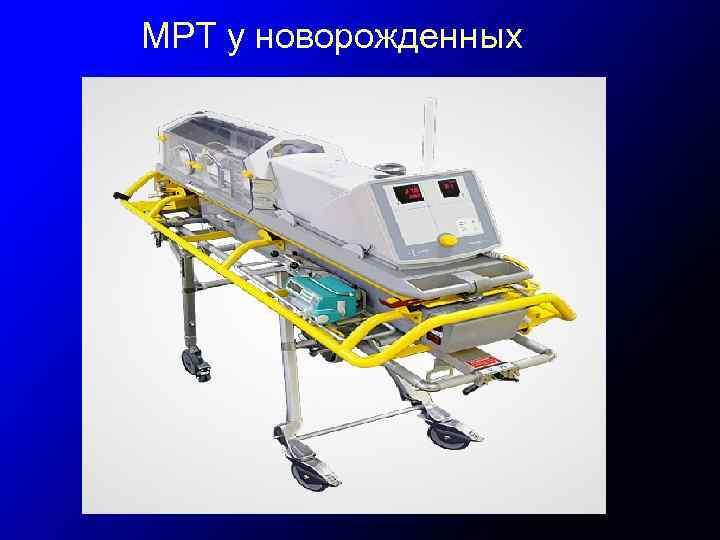 МРТ у новорожденных