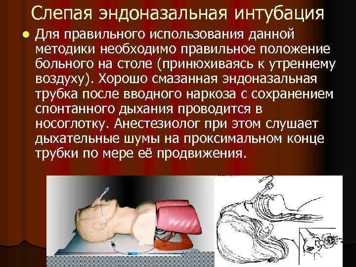 Слепая эндоназальная интубация l Для правильного использования данной методики необходимо правильное положение больного на