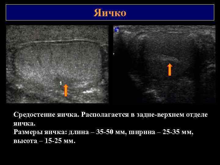 Яичко Средостение яичка. Располагается в задне верхнем отделе яичка. Размеры яичка: длина – 35