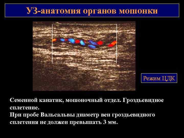 УЗ анатомия органов мошонки Режим ЦДК Семенной канатик, мошоночный отдел. Гроздьевидное сплетение. При пробе
