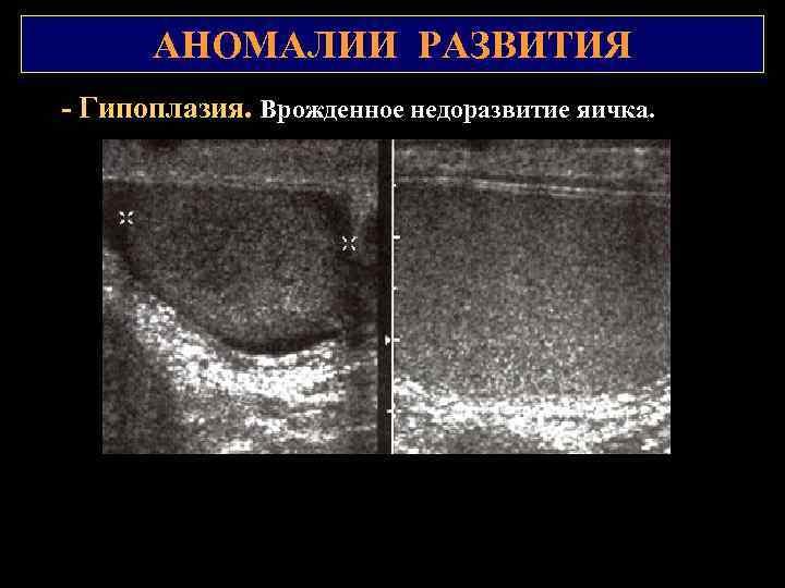 АНОМАЛИИ РАЗВИТИЯ Гипоплазия. Врожденное недоразвитие яичка.