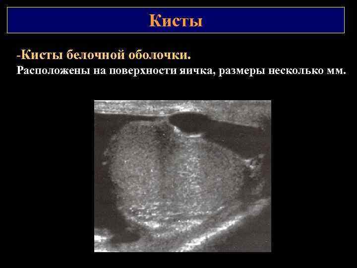 Кисты -Кисты белочной оболочки. Расположены на поверхности яичка, размеры несколько мм.