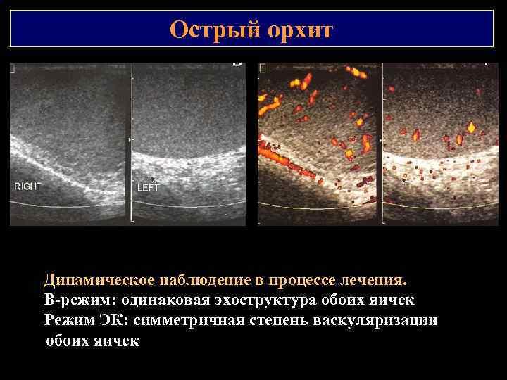 Острый орхит Динамическое наблюдение в процессе лечения. В режим: одинаковая эхоструктура обоих яичек Режим