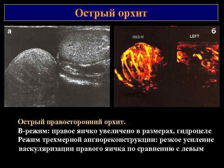 Острый орхит Острый правосторонний орхит. В режим: правое яичко увеличено в размерах, гидроцеле Режим
