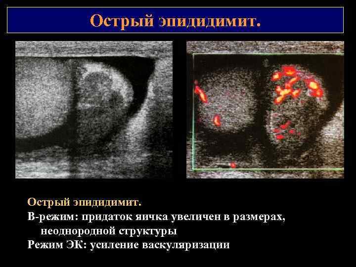 Острый эпидидимит. В режим: придаток яичка увеличен в размерах, неоднородной структуры Режим ЭК: усиление