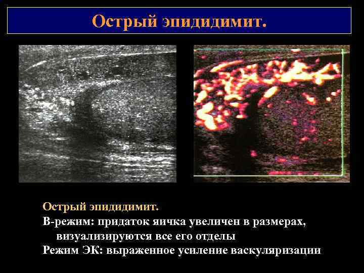 Острый эпидидимит. В режим: придаток яичка увеличен в размерах, визуализируются все его отделы Режим