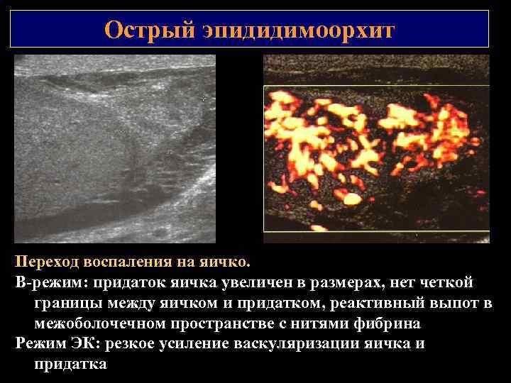 Острый эпидидимоорхит Переход воспаления на яичко. В режим: придаток яичка увеличен в размерах, нет