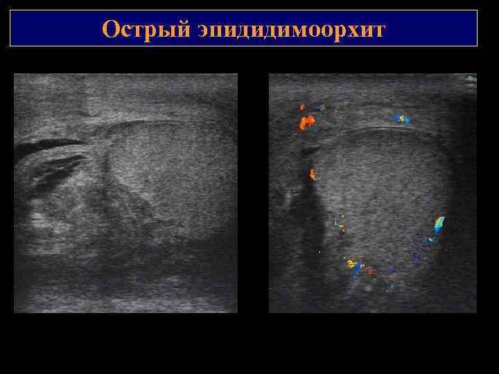 Острый эпидидимоорхит