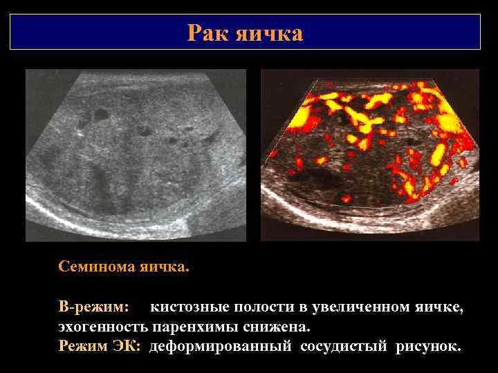 Рак яичка Семинома яичка. В режим: кистозные полости в увеличенном яичке, эхогенность паренхимы снижена.