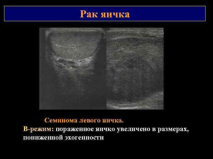 Рак яичка Семинома левого яичка. В режим: пораженное яичко увеличено в размерах, пониженной эхогенности